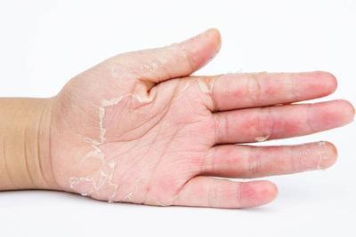 神经性皮炎和银屑病的区别