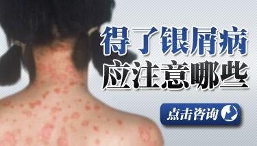 银屑病患者如何皮肤护理